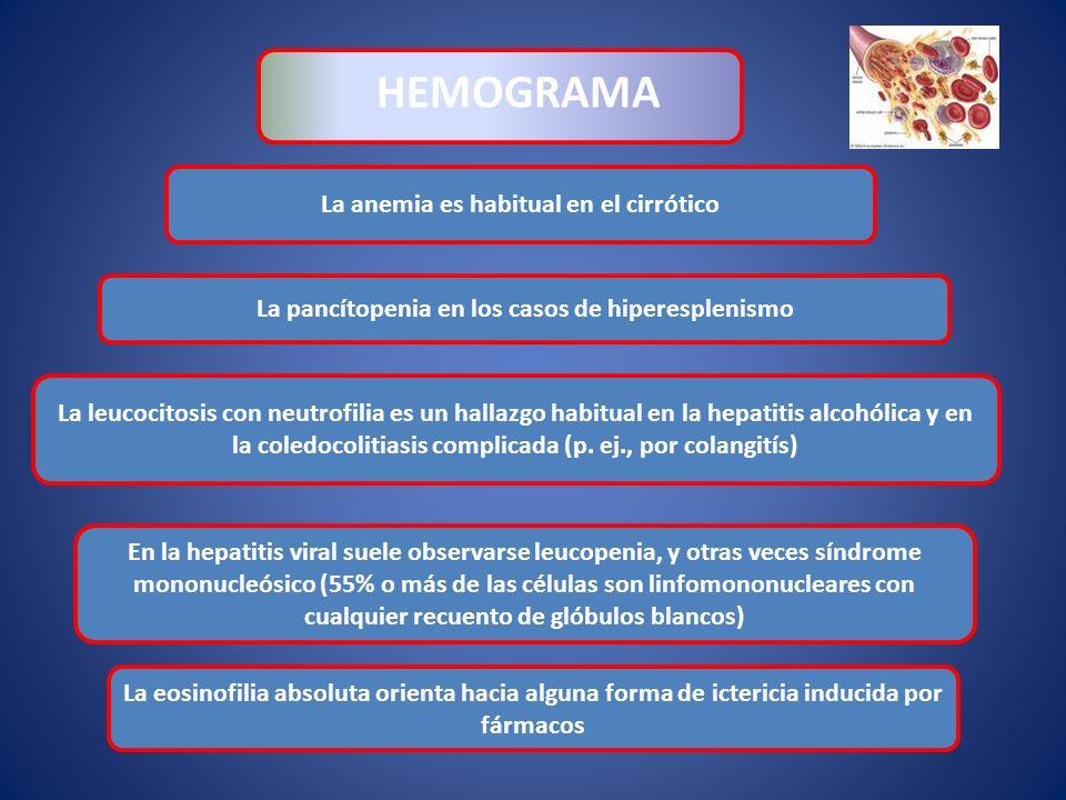 La anemia es habitual en el cirrótico HEMOGRAMA La leucocitosis con neutrofilia es un hallazgo habitual en la hepatitis alcohólica y en la coledocolit