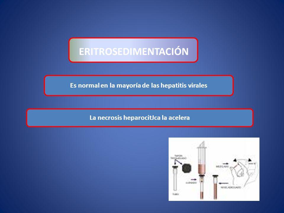 Es normal en la mayoría de las hepatitis virales ERITROSEDIMENTACIÓN La necrosis heparocitJca la acelera