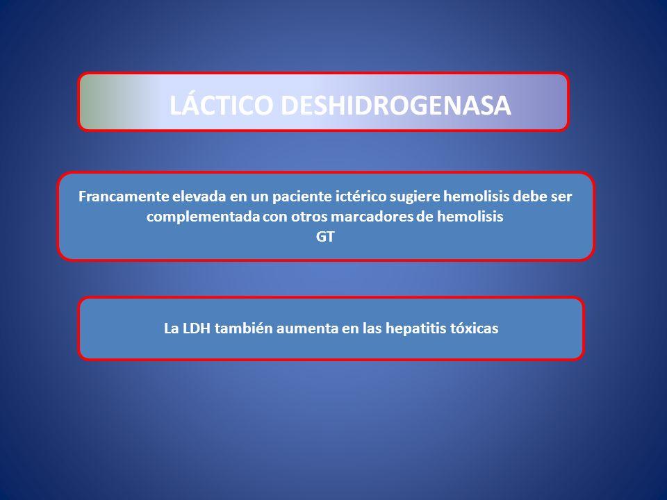 LÁCTICO DESHIDROGENASA La LDH también aumenta en las hepatitis tóxicas Francamente elevada en un paciente ictérico sugiere hemolisis debe ser compleme