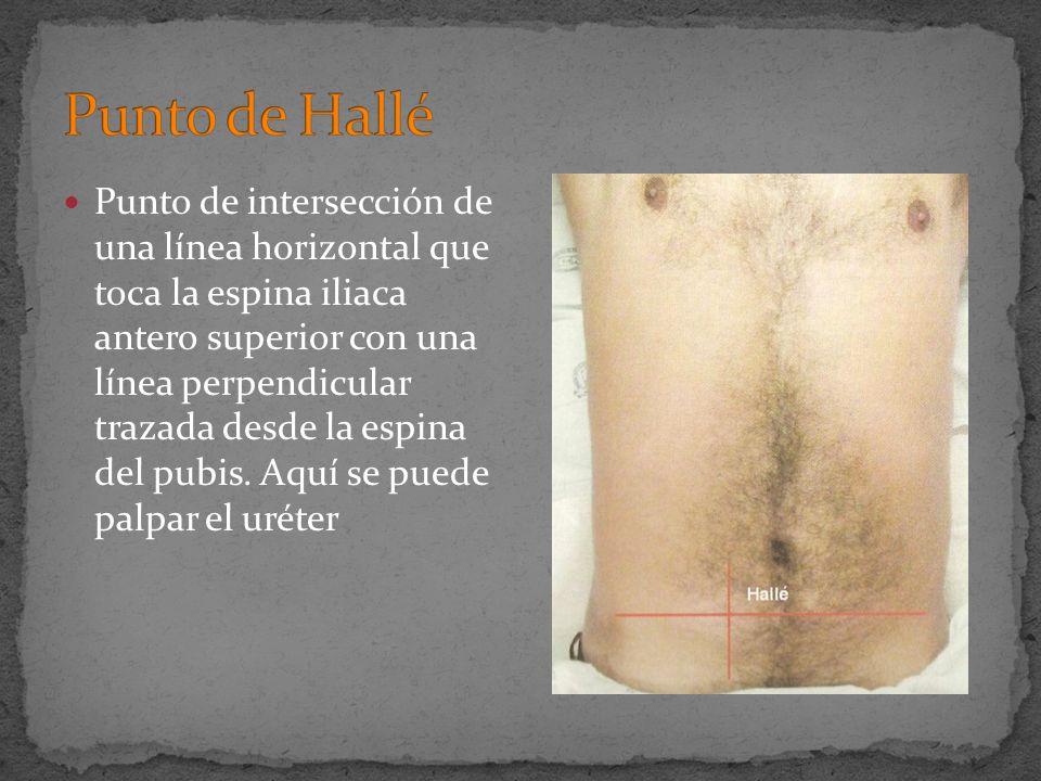 Punto de intersección de una línea horizontal que toca la espina iliaca antero superior con una línea perpendicular trazada desde la espina del pubis.