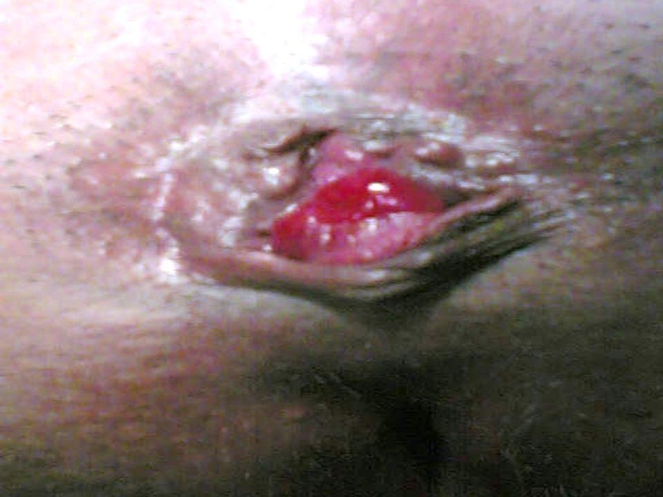 Fístulas anales Signos y síntomas: Si el orificio externo de la fístula esta permeable hay secreción purulenta Si el orificio externo de la fístula esta permeable hay secreción purulenta Si el orificio externo no esta permeable produce sintomatología de absceso perianal Si el orificio externo no esta permeable produce sintomatología de absceso perianal