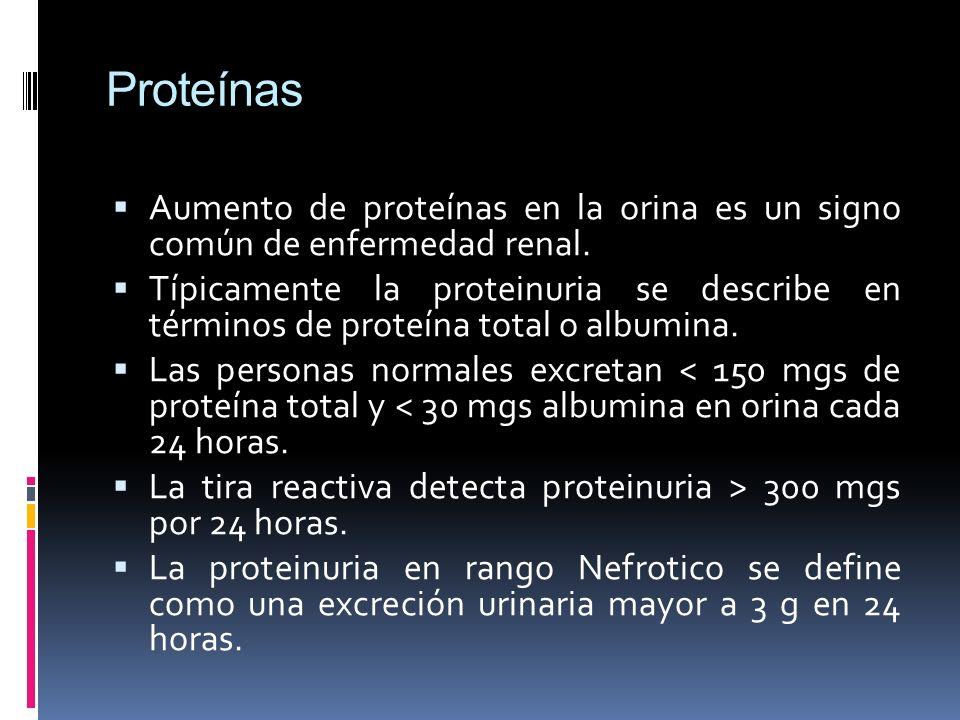 Proteínas Aumento de proteínas en la orina es un signo común de enfermedad renal. Típicamente la proteinuria se describe en términos de proteína total
