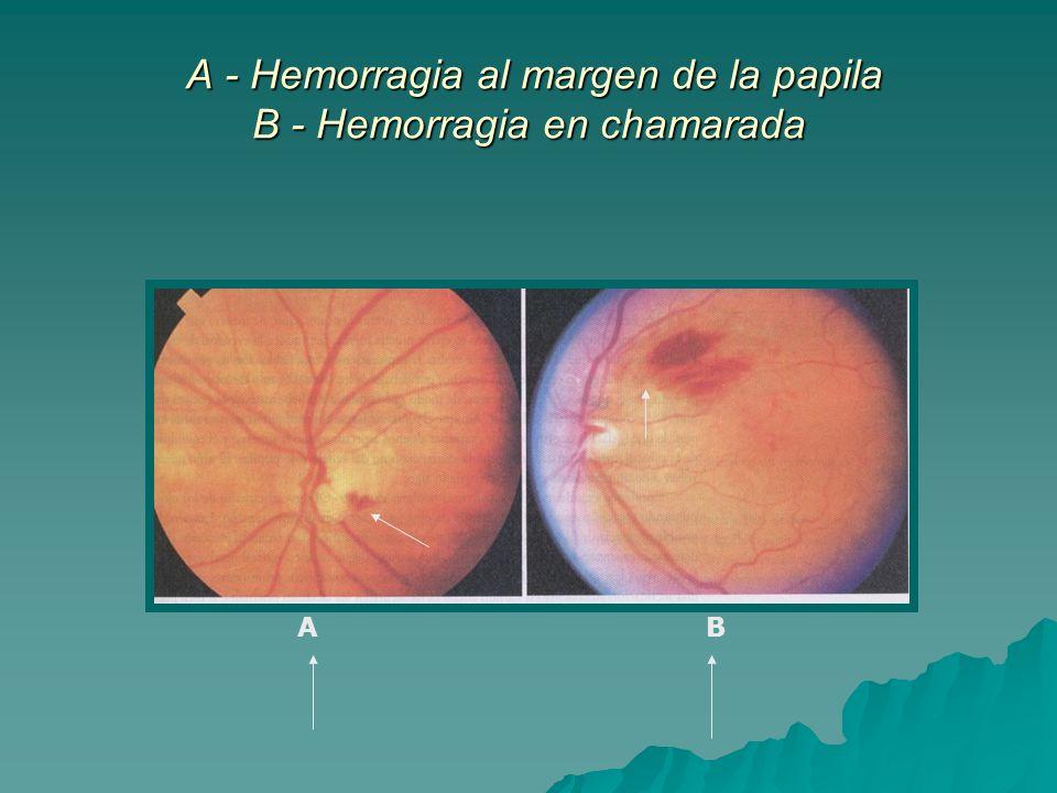A - Hemorragia al margen de la papila B - Hemorragia en chamarada A - Hemorragia al margen de la papila B - Hemorragia en chamarada AB