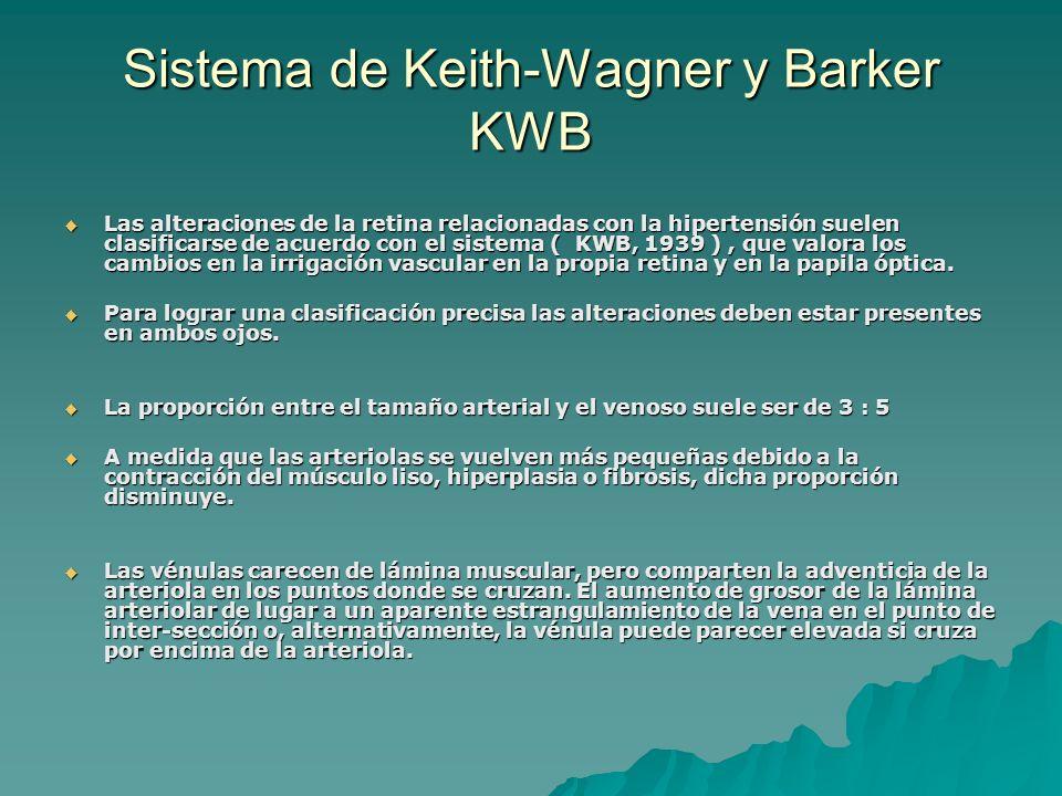 Sistema de Keith-Wagner y Barker KWB Las alteraciones de la retina relacionadas con la hipertensión suelen clasificarse de acuerdo con el sistema ( KW