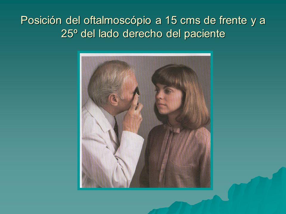Posición del oftalmoscópio a 15 cms de frente y a 25º del lado derecho del paciente