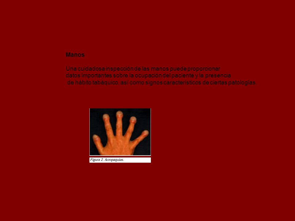 Manos Una cuidadosa inspección de las manos puede proporcionar datos importantes sobre la ocupación del paciente y la presencia de hábito tabáquico, a