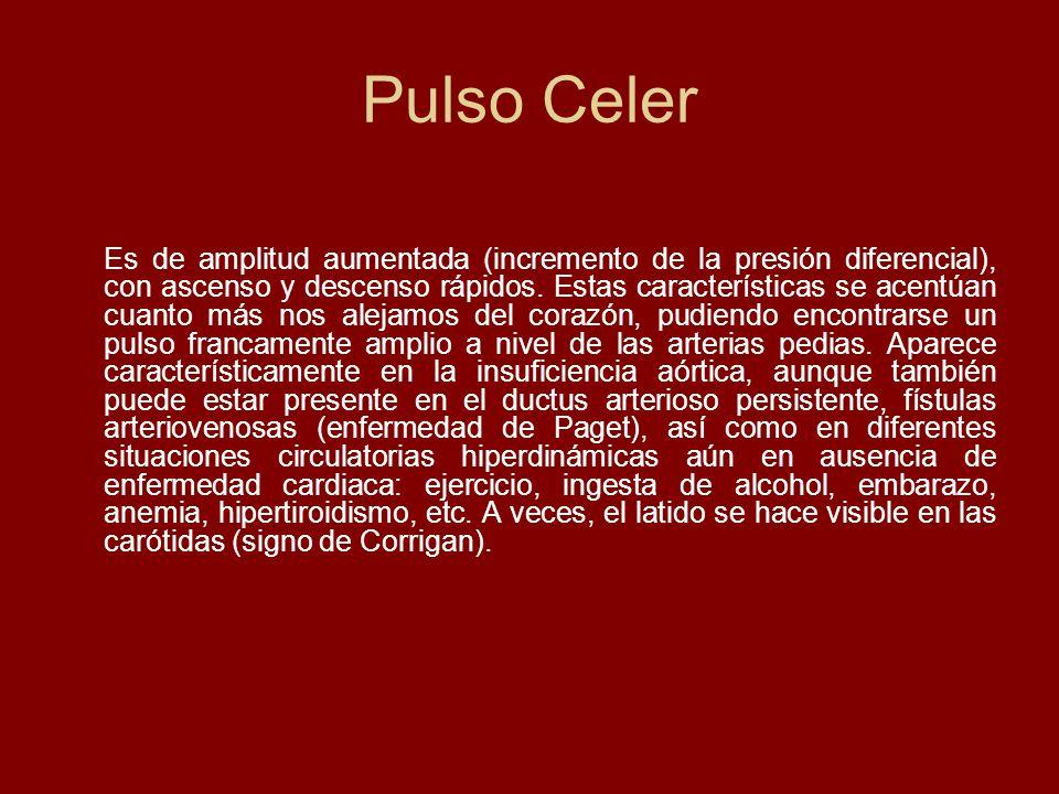 Pulso Celer Es de amplitud aumentada (incremento de la presión diferencial), con ascenso y descenso rápidos. Estas características se acentúan cuanto