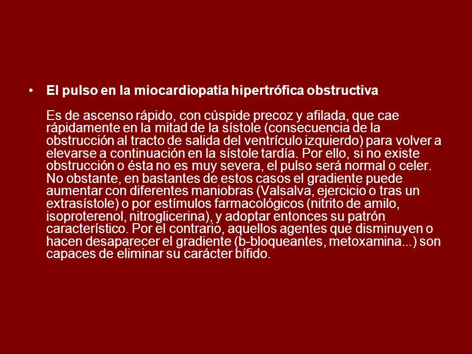 El pulso en la miocardiopatía hipertrófica obstructiva Es de ascenso rápido, con cúspide precoz y afilada, que cae rápidamente en la mitad de la sísto