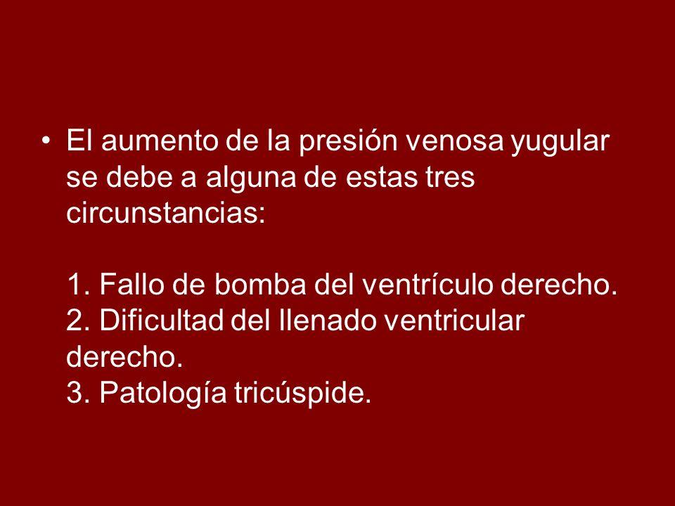 El aumento de la presión venosa yugular se debe a alguna de estas tres circunstancias: 1. Fallo de bomba del ventrículo derecho. 2. Dificultad del lle