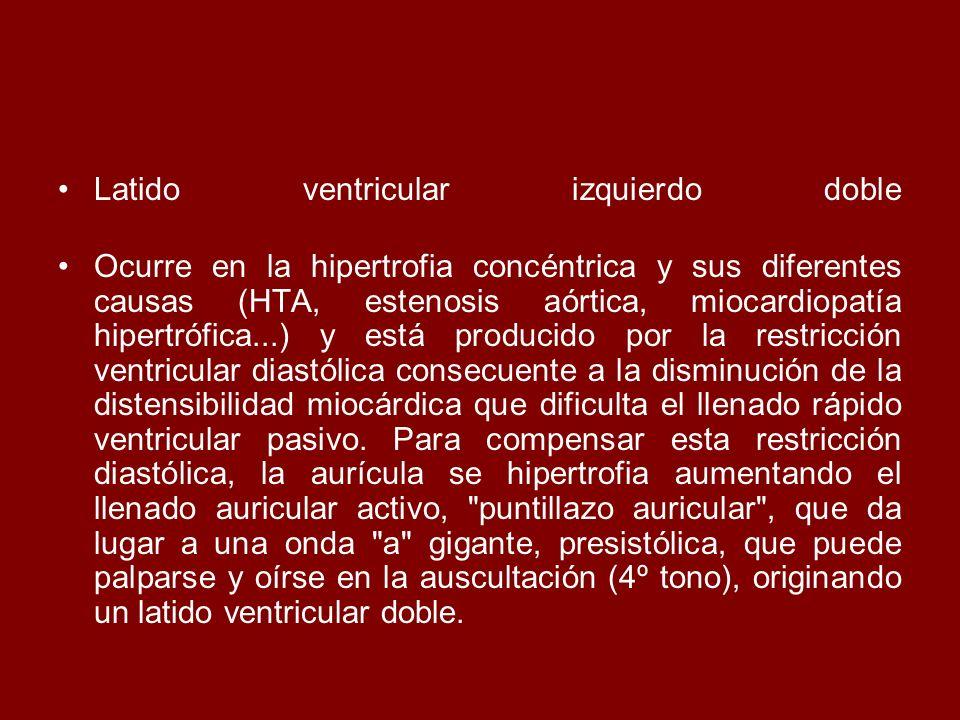 Latido ventricular izquierdo doble Ocurre en la hipertrofia concéntrica y sus diferentes causas (HTA, estenosis aórtica, miocardiopatía hipertrófica..