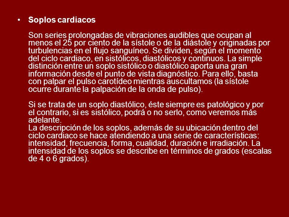 Soplos cardiacos Son series prolongadas de vibraciones audibles que ocupan al menos el 25 por ciento de la sístole o de la diástole y originadas por t