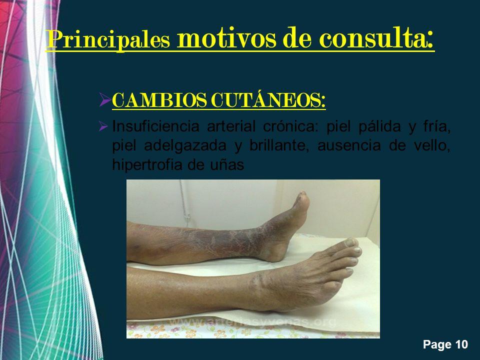 Free Powerpoint Templates Page 10 Principales motivos de consulta: CAMBIOS CUTÁNEOS: Insuficiencia arterial crónica: piel pálida y fría, piel adelgaza