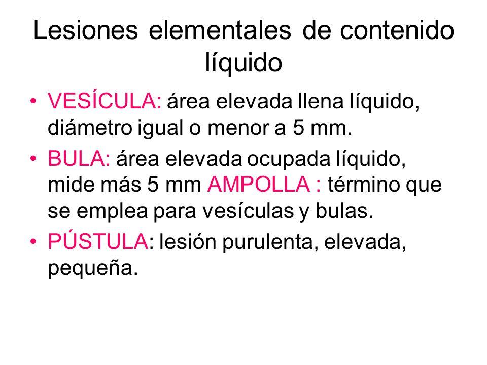 Lesiones elementales de contenido líquido VESÍCULA: área elevada llena líquido, diámetro igual o menor a 5 mm. BULA: área elevada ocupada líquido, mid