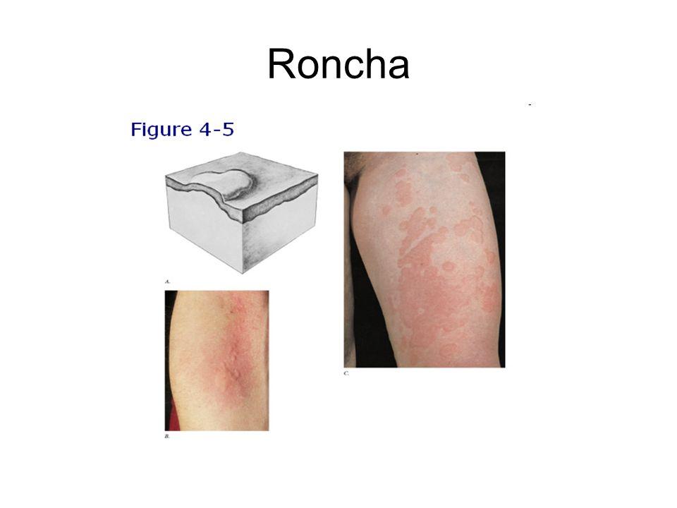 Roncha