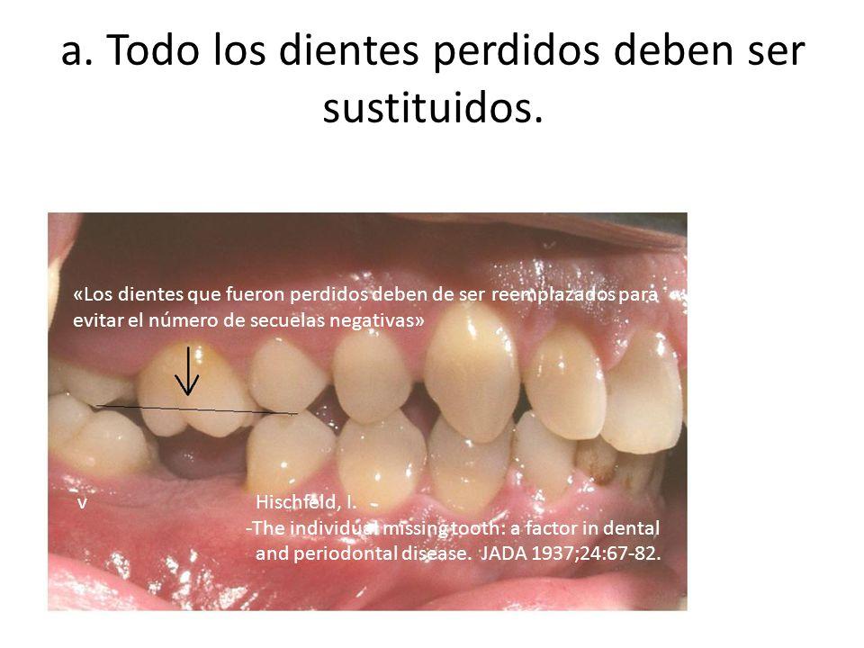 a. Todo los dientes perdidos deben ser sustituidos. «Los dientes que fueron perdidos deben de ser reemplazados para evitar el número de secuelas negat