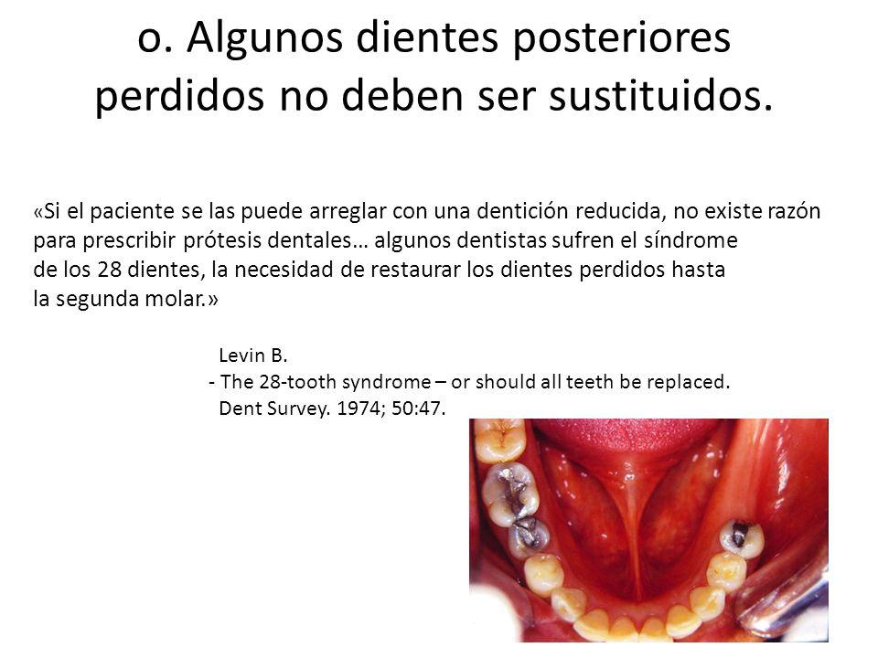o. Algunos dientes posteriores perdidos no deben ser sustituidos. « Si el paciente se las puede arreglar con una dentición reducida, no existe razón p