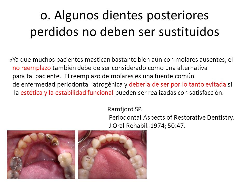 o. Algunos dientes posteriores perdidos no deben ser sustituidos « Ya que muchos pacientes mastican bastante bien aún con molares ausentes, el no reem
