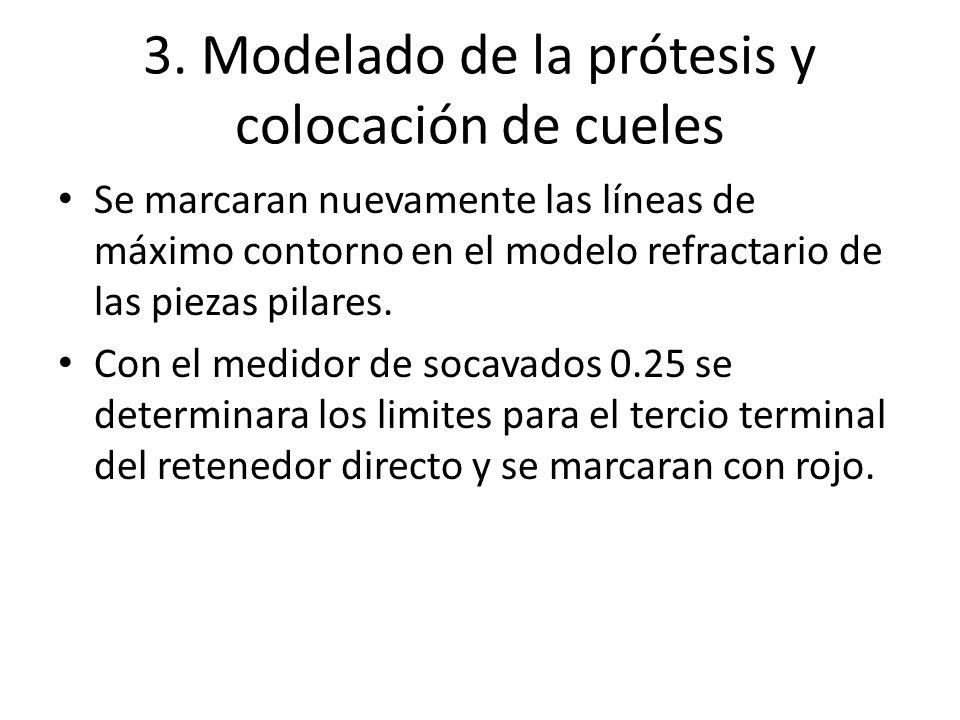 3. Modelado de la prótesis y colocación de cueles Se marcaran nuevamente las líneas de máximo contorno en el modelo refractario de las piezas pilares.