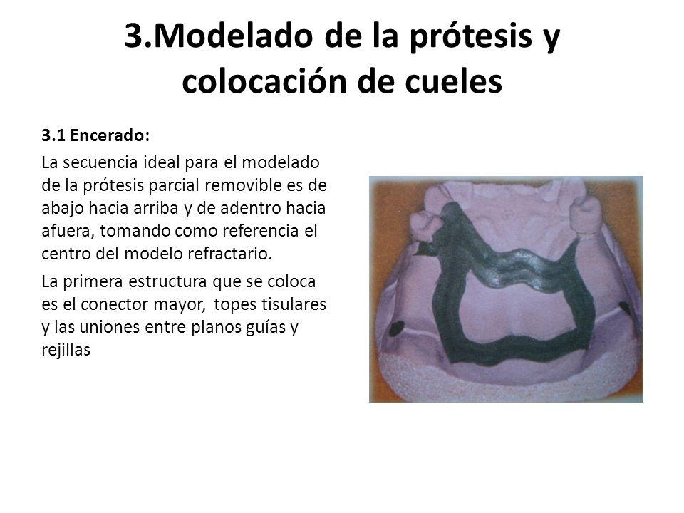 3.Modelado de la prótesis y colocación de cueles 3.1 Encerado: La secuencia ideal para el modelado de la prótesis parcial removible es de abajo hacia