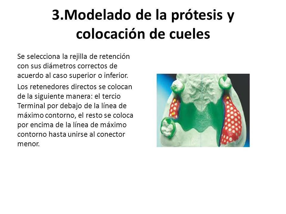 3.Modelado de la prótesis y colocación de cueles Se selecciona la rejilla de retención con sus diámetros correctos de acuerdo al caso superior o infer