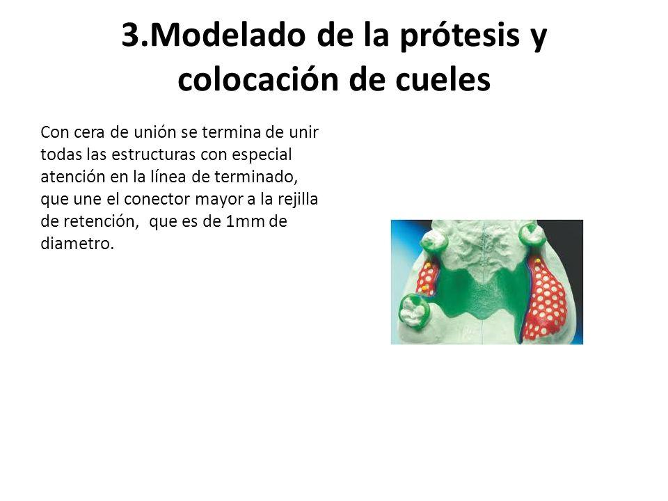 3.Modelado de la prótesis y colocación de cueles Con cera de unión se termina de unir todas las estructuras con especial atención en la línea de termi
