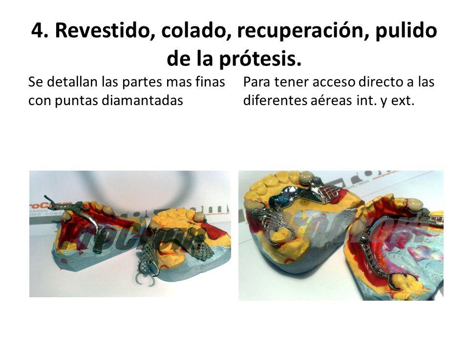 4. Revestido, colado, recuperación, pulido de la prótesis. Se detallan las partes mas finas con puntas diamantadas Para tener acceso directo a las dif