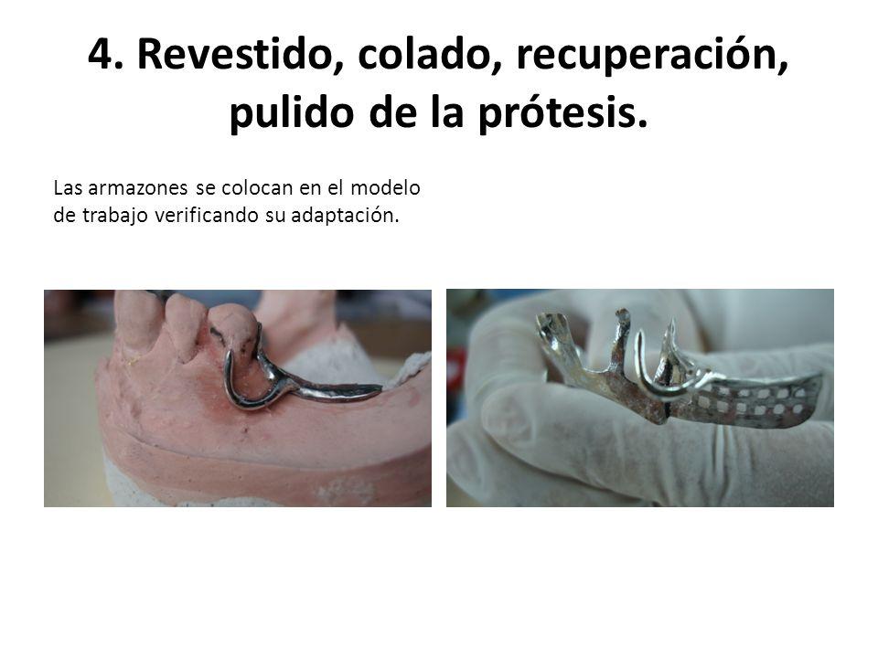 4. Revestido, colado, recuperación, pulido de la prótesis. Las armazones se colocan en el modelo de trabajo verificando su adaptación.