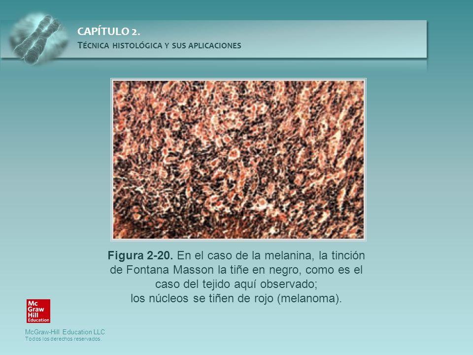 McGraw-Hill Education LLC Todos los derechos reservados. CAPÍTULO 2. T ÉCNICA HISTOLÓGICA Y SUS APLICACIONES Figura 2-20. En el caso de la melanina, l