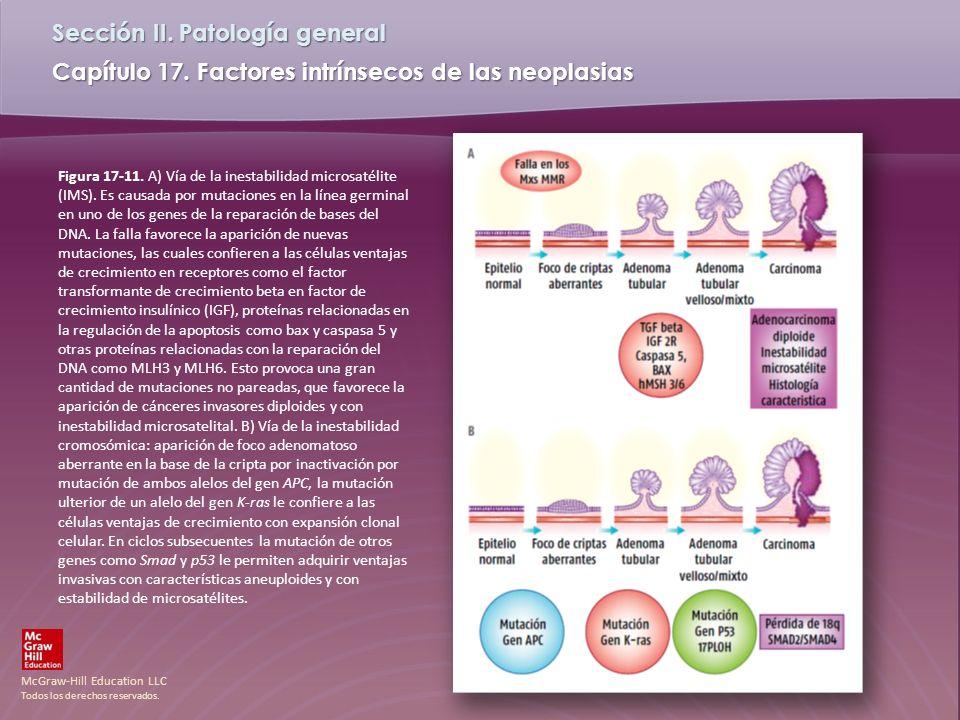 McGraw-Hill Education LLC Todos los derechos reservados. Capítulo 17. Factores intrínsecos de las neoplasias Sección II. Patología general Figura 17-1