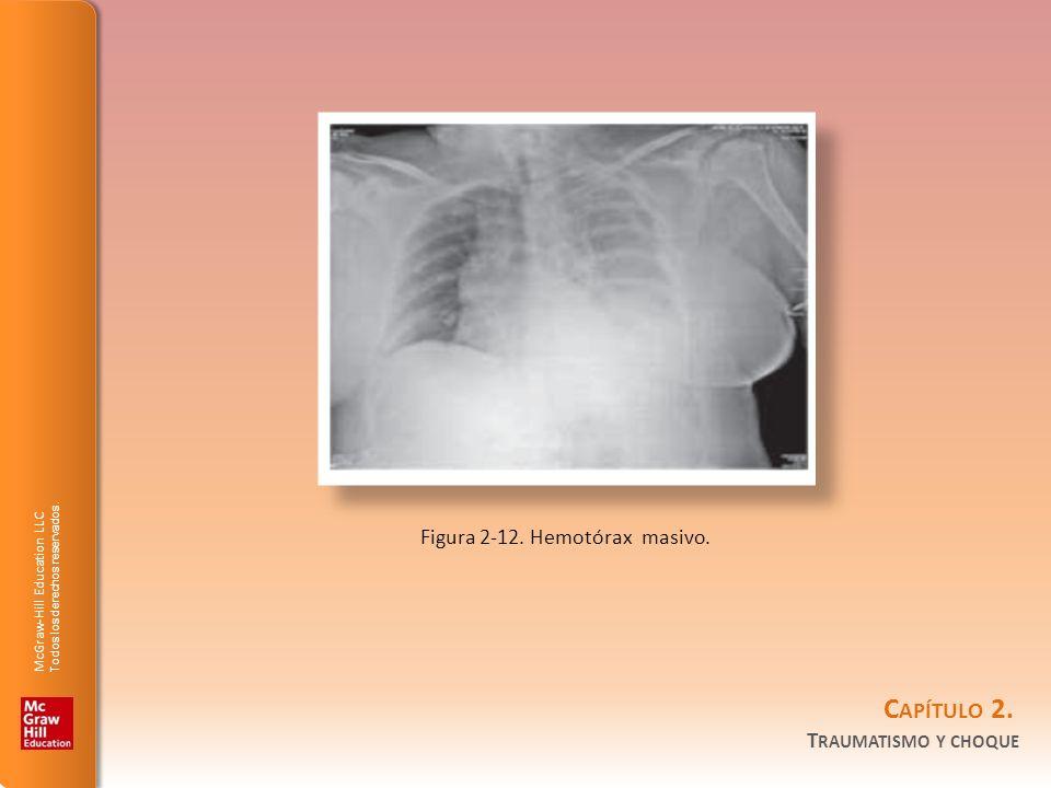 McGraw-Hill Education LLC Todos los derechos reservados. C APÍTULO 2. T RAUMATISMO Y CHOQUE Figura 2-12. Hemotórax masivo.