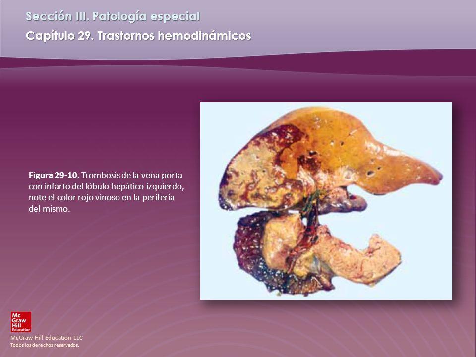McGraw-Hill Education LLC Todos los derechos reservados. Capítulo 29. Trastornos hemodinámicos Sección III. Patología especial Figura 29-10. Trombosis