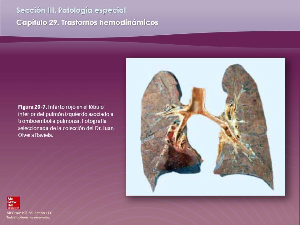 McGraw-Hill Education LLC Todos los derechos reservados. Capítulo 29. Trastornos hemodinámicos Sección III. Patología especial Figura 29-7. Infarto ro