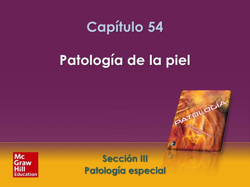 McGraw-Hill Education LLC Todos los derechos reservados. Capítulo 54. Patología de la piel Sección III. Patología especial Sección III Patología espec