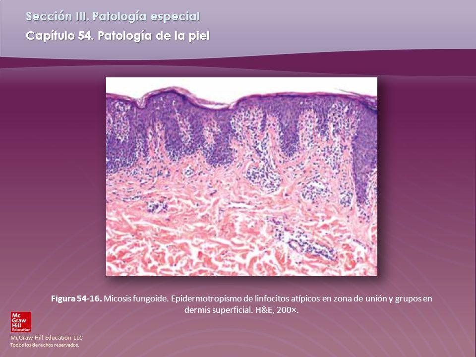 McGraw-Hill Education LLC Todos los derechos reservados. Capítulo 54. Patología de la piel Sección III. Patología especial Figura 54-16. Micosis fungo