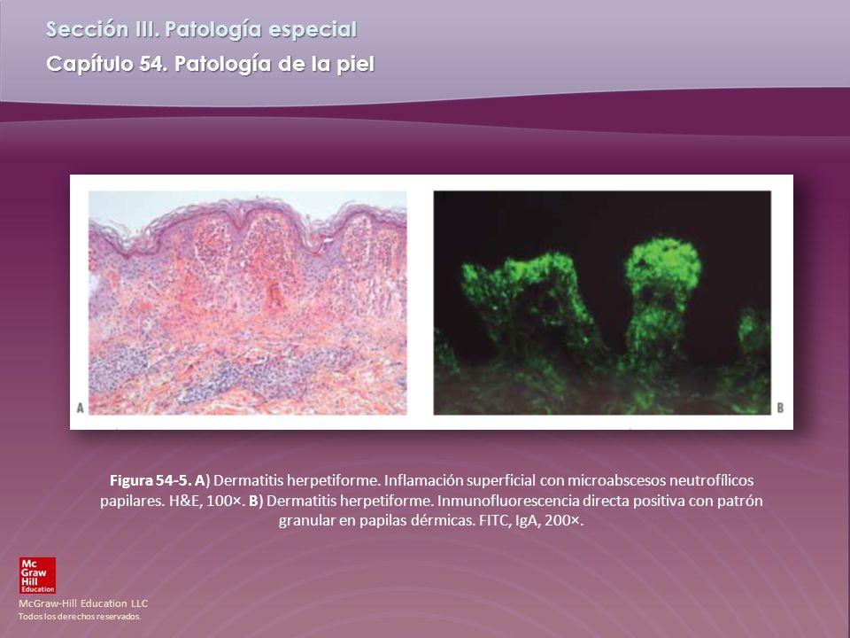 McGraw-Hill Education LLC Todos los derechos reservados. Capítulo 54. Patología de la piel Sección III. Patología especial Figura 54-5. A) Dermatitis
