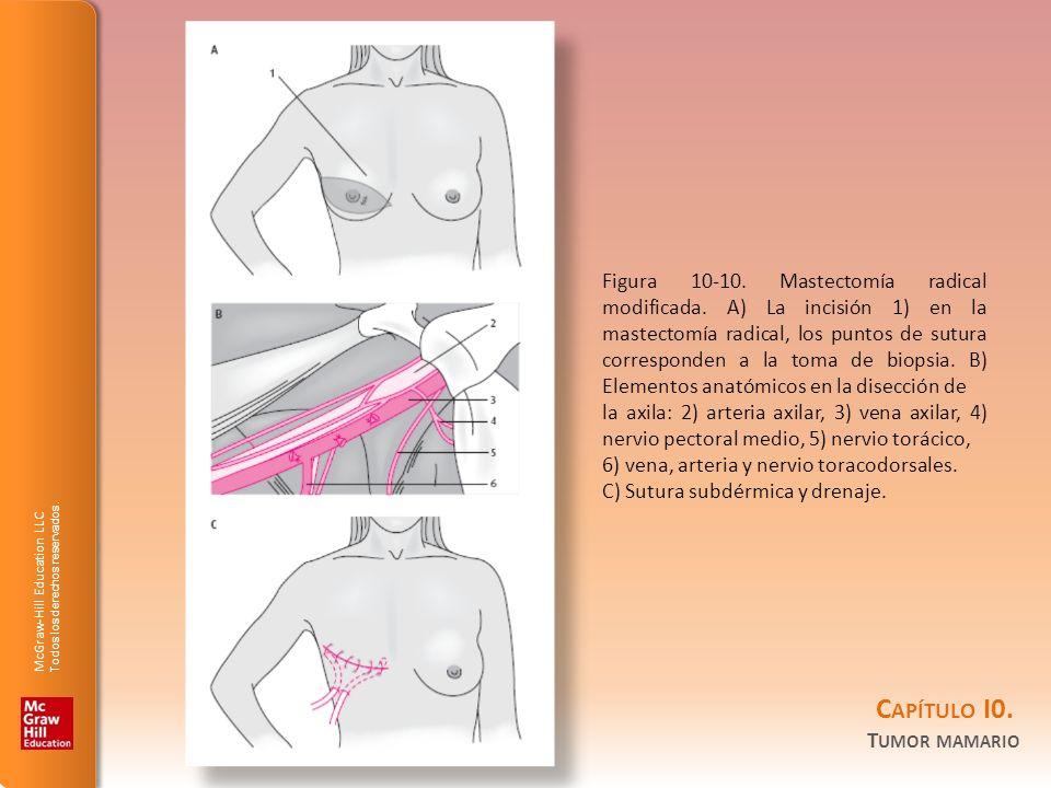 McGraw-Hill Education LLC Todos los derechos reservados. C APÍTULO I0. T UMOR MAMARIO Figura 10-10. Mastectomía radical modificada. A) La incisión 1)