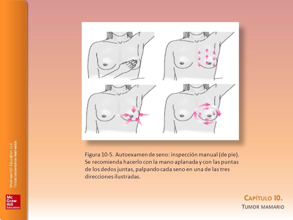 McGraw-Hill Education LLC Todos los derechos reservados. C APÍTULO I0. T UMOR MAMARIO Figura 10-5. Autoexamen de seno: inspección manual (de pie). Se