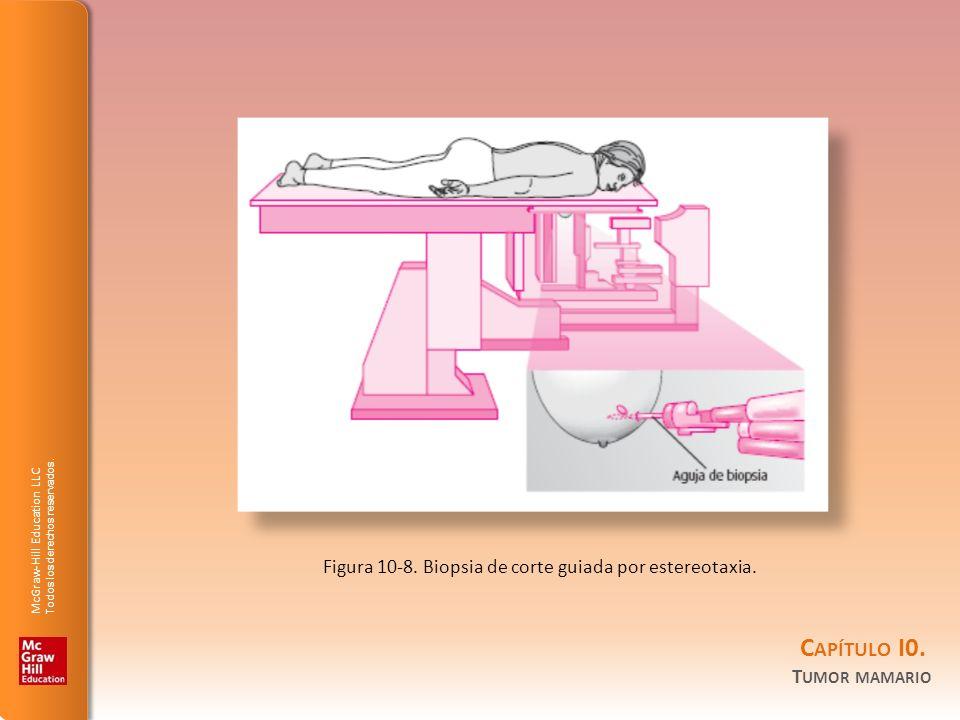 McGraw-Hill Education LLC Todos los derechos reservados. C APÍTULO I0. T UMOR MAMARIO Figura 10-8. Biopsia de corte guiada por estereotaxia.