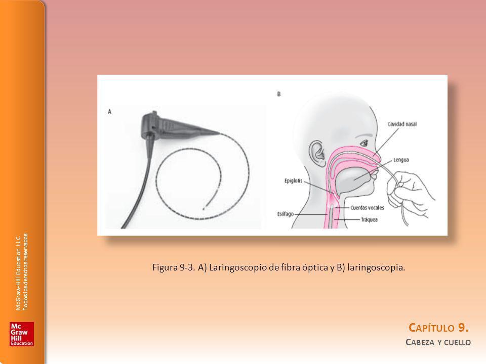 McGraw-Hill Education LLC Todos los derechos reservados. C APÍTULO 9. C ABEZA Y CUELLO Figura 9-3. A) Laringoscopio de fibra óptica y B) laringoscopia
