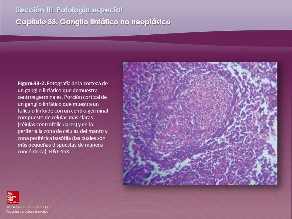 McGraw-Hill Education LLC Todos los derechos reservados. Capítulo 33. Ganglio linfático no neoplásico Sección III. Patología especial Figura 33-2. Fot