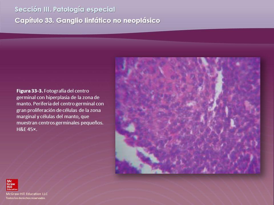McGraw-Hill Education LLC Todos los derechos reservados. Capítulo 33. Ganglio linfático no neoplásico Sección III. Patología especial Figura 33-3. Fot