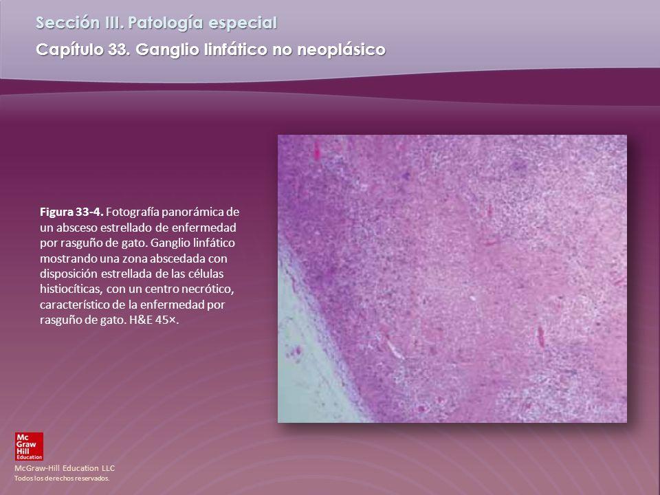 McGraw-Hill Education LLC Todos los derechos reservados. Capítulo 33. Ganglio linfático no neoplásico Sección III. Patología especial Figura 33-4. Fot
