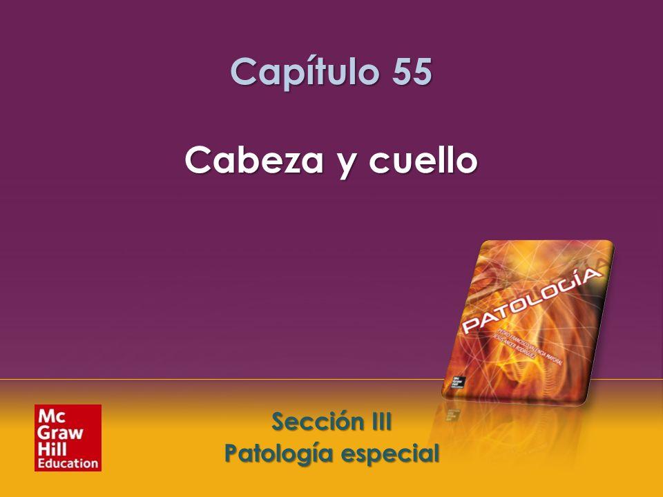 McGraw-Hill Education LLC Todos los derechos reservados. Capítulo 55. Cabeza y cuello Sección III. Patología especial Sección III Patología especial C