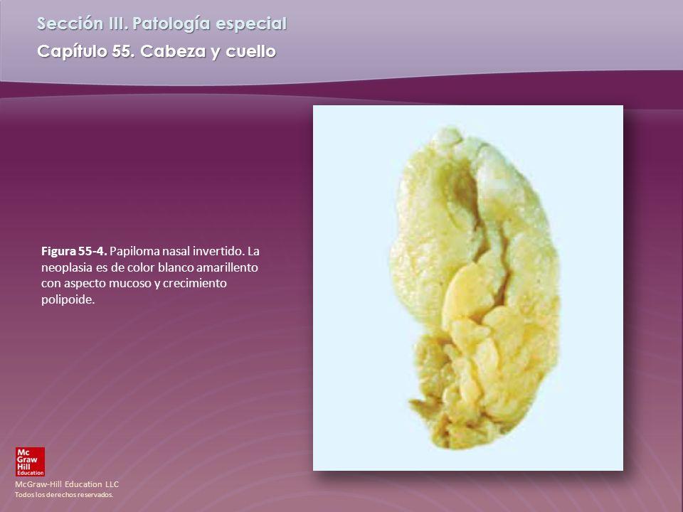 McGraw-Hill Education LLC Todos los derechos reservados. Capítulo 55. Cabeza y cuello Sección III. Patología especial Figura 55-4. Papiloma nasal inve