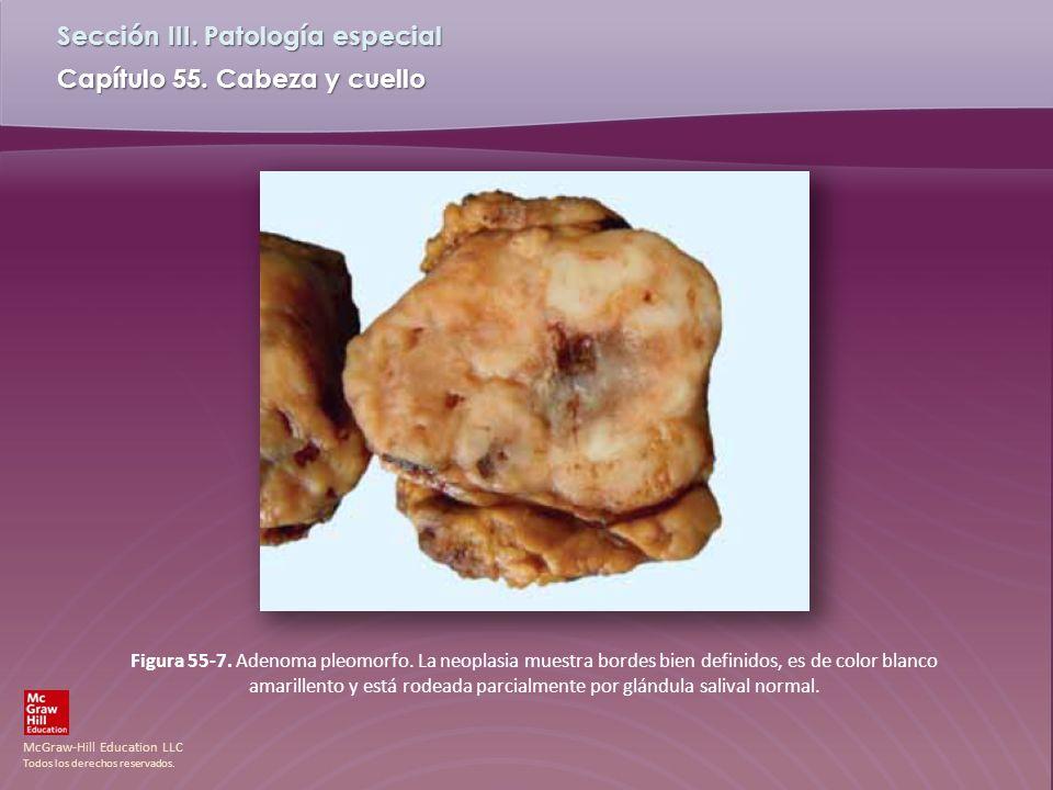 McGraw-Hill Education LLC Todos los derechos reservados. Capítulo 55. Cabeza y cuello Sección III. Patología especial Figura 55-7. Adenoma pleomorfo.