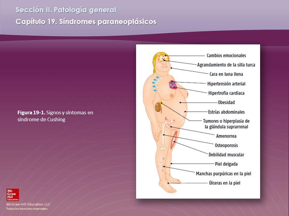 McGraw-Hill Education LLC Todos los derechos reservados. Capítulo 19. Síndromes paraneoplásicos Sección II. Patología general Figura 19-1. Signos y sí