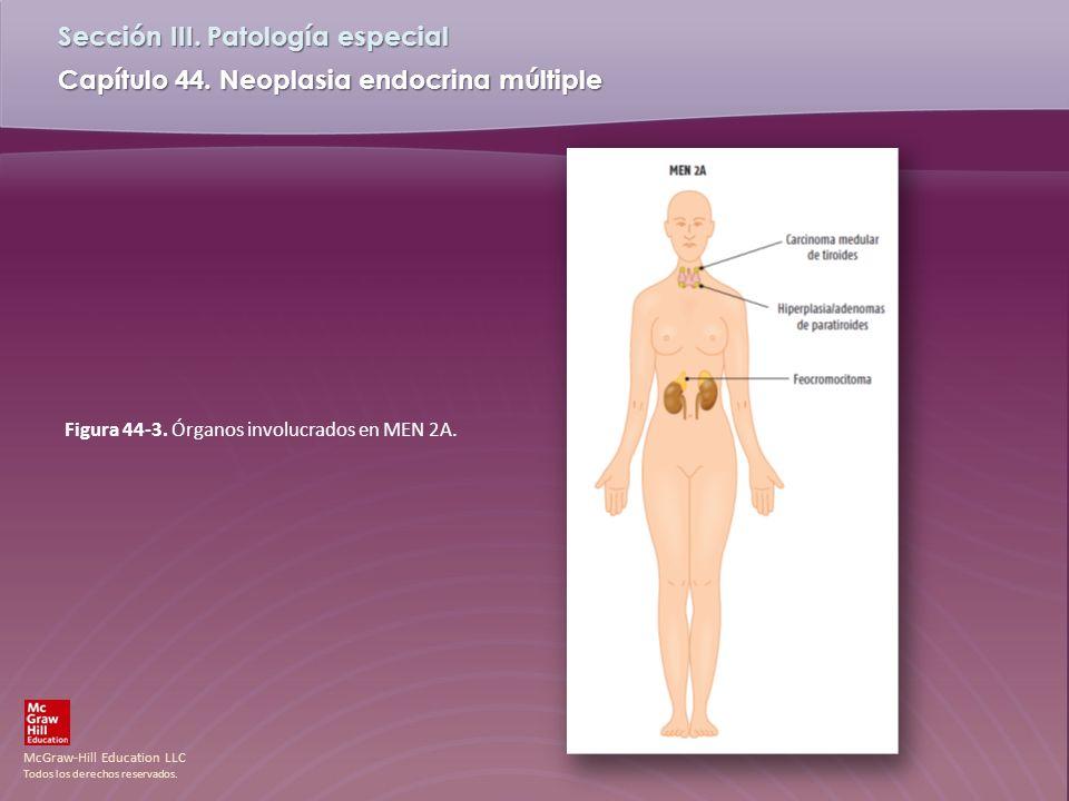 McGraw-Hill Education LLC Todos los derechos reservados. Capítulo 44. Neoplasia endocrina múltiple Sección III. Patología especial Figura 44-3. Órgano