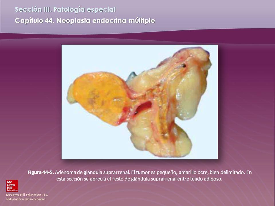 McGraw-Hill Education LLC Todos los derechos reservados. Capítulo 44. Neoplasia endocrina múltiple Sección III. Patología especial Figura 44-5. Adenom