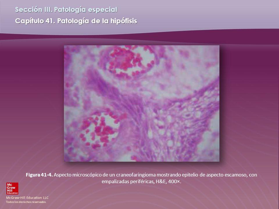 McGraw-Hill Education LLC Todos los derechos reservados. Capítulo 41. Patología de la hipófisis Sección III. Patología especial Figura 41-4. Aspecto m