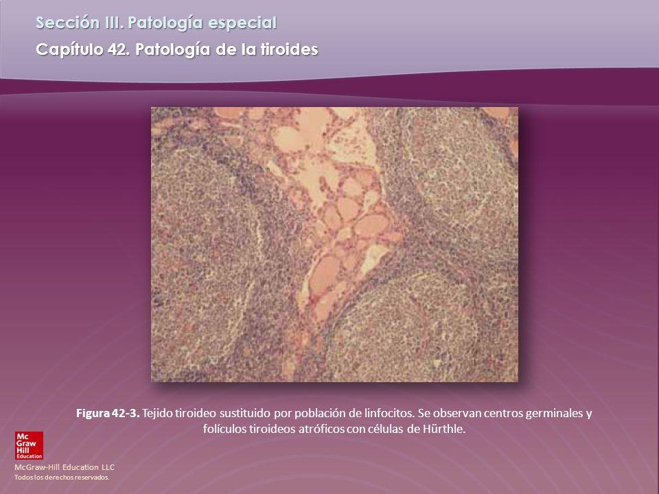 McGraw-Hill Education LLC Todos los derechos reservados. Capítulo 42. Patología de la tiroides Sección III. Patología especial Figura 42-3. Tejido tir